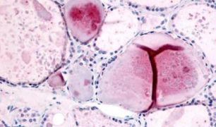 PDE8B Antibody (PA5-32980)