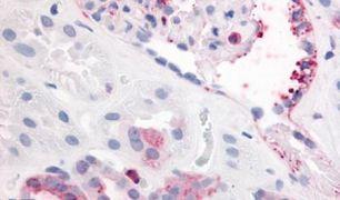 PDGFRB Antibody (PA5-32984)