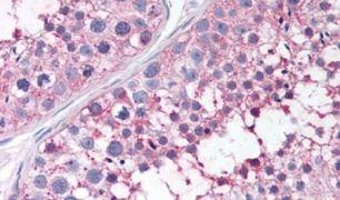 PTGES Antibody (PA5-34126)