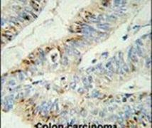 PHLPP2 Antibody (PA5-25995)