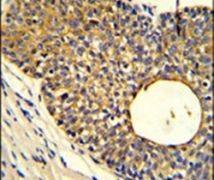 APOBEC3A Antibody (PA5-11431)