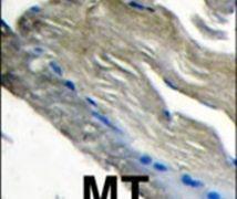 PIK3CG Antibody (PA5-15504)