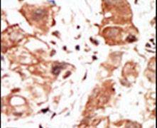 PIM1 Antibody (PA5-15123)
