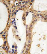 PIM1 Antibody (PA5-15124)