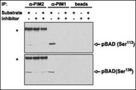 PIM2 Antibody (PA5-15125)
