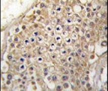 PIP4K2C Antibody (PA5-15289)