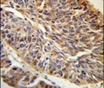 PITX1 Antibody (PA5-14219)