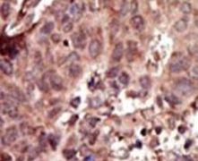 PKLR Antibody (PA5-13788)