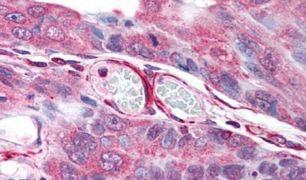 PLA2G3 Antibody (PA5-32988)