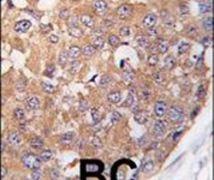 PLK2 Antibody (PA5-14094)