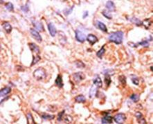 PPM1F Antibody (PA5-15572)
