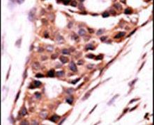 PPP3CB Antibody (PA5-15581)