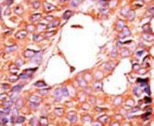 PPP6C Antibody (PA5-15607)