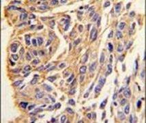 PPT1 Antibody (PA5-12229)