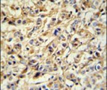 PRELP Antibody (PA5-25897)