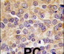 PRMT3 Antibody (PA5-11116)