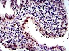 PSMB8 Antibody (MA5-15890)