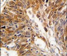 PSMD11 Antibody (PA5-12407)