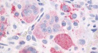 PTH1R Antibody (PA5-34132)