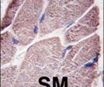 PTPN21 Antibody (PA5-15526)
