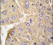 PTPN7 Antibody (PA5-14559)