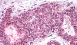 PTPRA Antibody (PA5-34136)