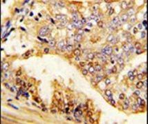 PUM2 Antibody (PA5-14814)