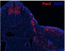 PAX3 Antibody (PA1-107)
