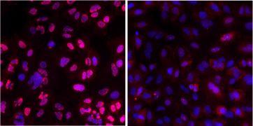 Phospho-ATM (Ser1981) Antibody (MA5-15185)