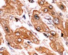 Phospho-BIK (Thr33) Antibody (PA5-12556)