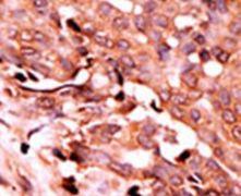 Phospho-Caspase 6 (Ser257) Antibody (PA5-12557)