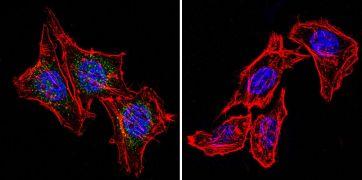 Phospho-Progesterone Receptor (Ser294) Antibody (MA1-414)