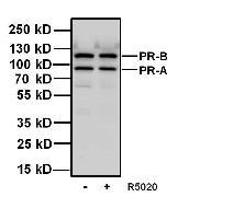 Progesterone Receptor Antibody (MA1-12626)