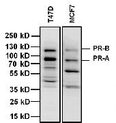 Progesterone Receptor Antibody (MA5-14505)