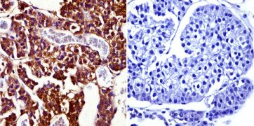 Prolactin Receptor Antibody (MA1-611)