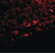 TBKBP1 Antibody (PA5-20814)