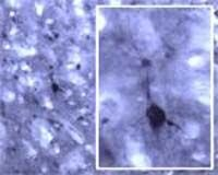 RALA Antibody (OSR00268W)