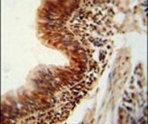 RBM43 Antibody (PA5-24106)