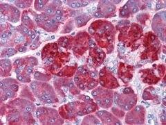 REG1A Antibody (MA5-15524)