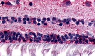 RGR Antibody (PA5-34154)
