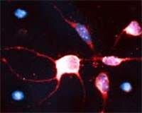 RhoB Antibody (OSR00267W)