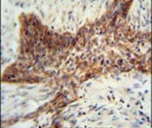 RILPL2 Antibody (PA5-24505)