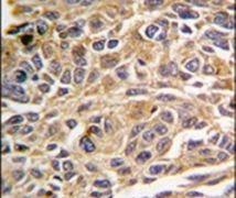 RIP3 Antibody (PA5-13996)
