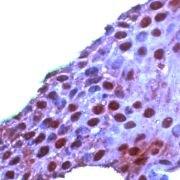 ROC1 Antibody (PA5-32573)