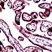 RRM1 Antibody (PA5-32574)