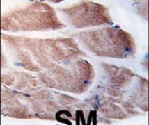 RSK2 Antibody (PA5-15140)