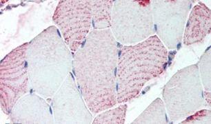 RXFP2 Antibody (PA5-34173)