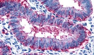 RXFP2 Antibody (PA5-34174)