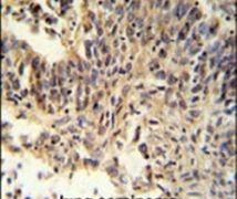 RXRA Antibody (PA5-24845)