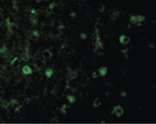 RHEB Antibody (PA5-20129)
